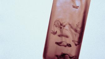 |color|vertical|interior|right|science|social issue|test tube|water|pollution|discovery|anatomy of medicine|dirty|closeup|detail|glassware|laboratory equipment|experiment|brown|gray|Resource Book 11|SS36|SS36067.JPG|blood|blood test|research|health|illness|SS_0036||