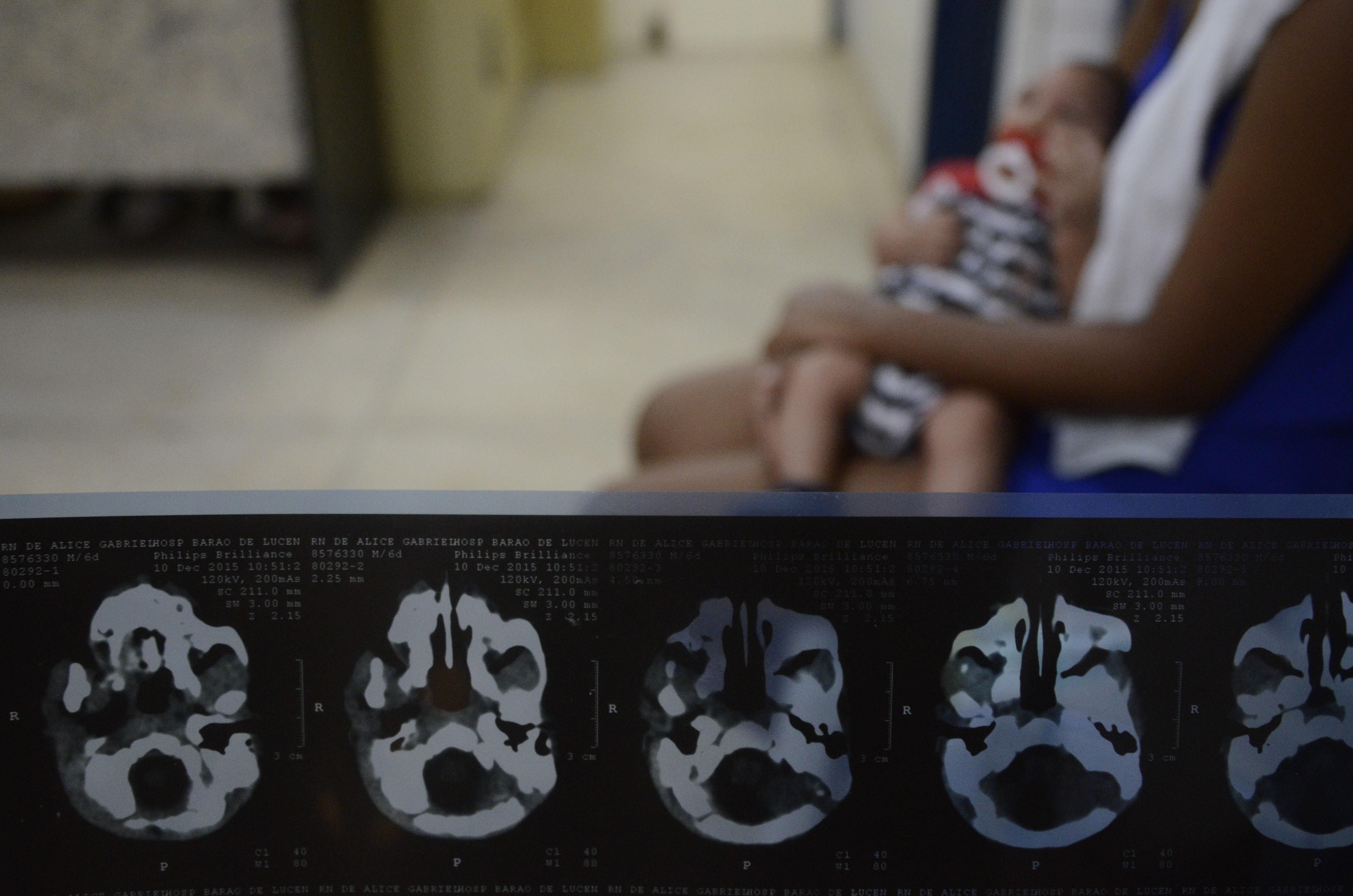 RECIFE, BRAZIL - FEBRUARY 01: Detail of X-Rays of João Heitor baby born with microcephaly at Oswaldo Cruz Hospital on