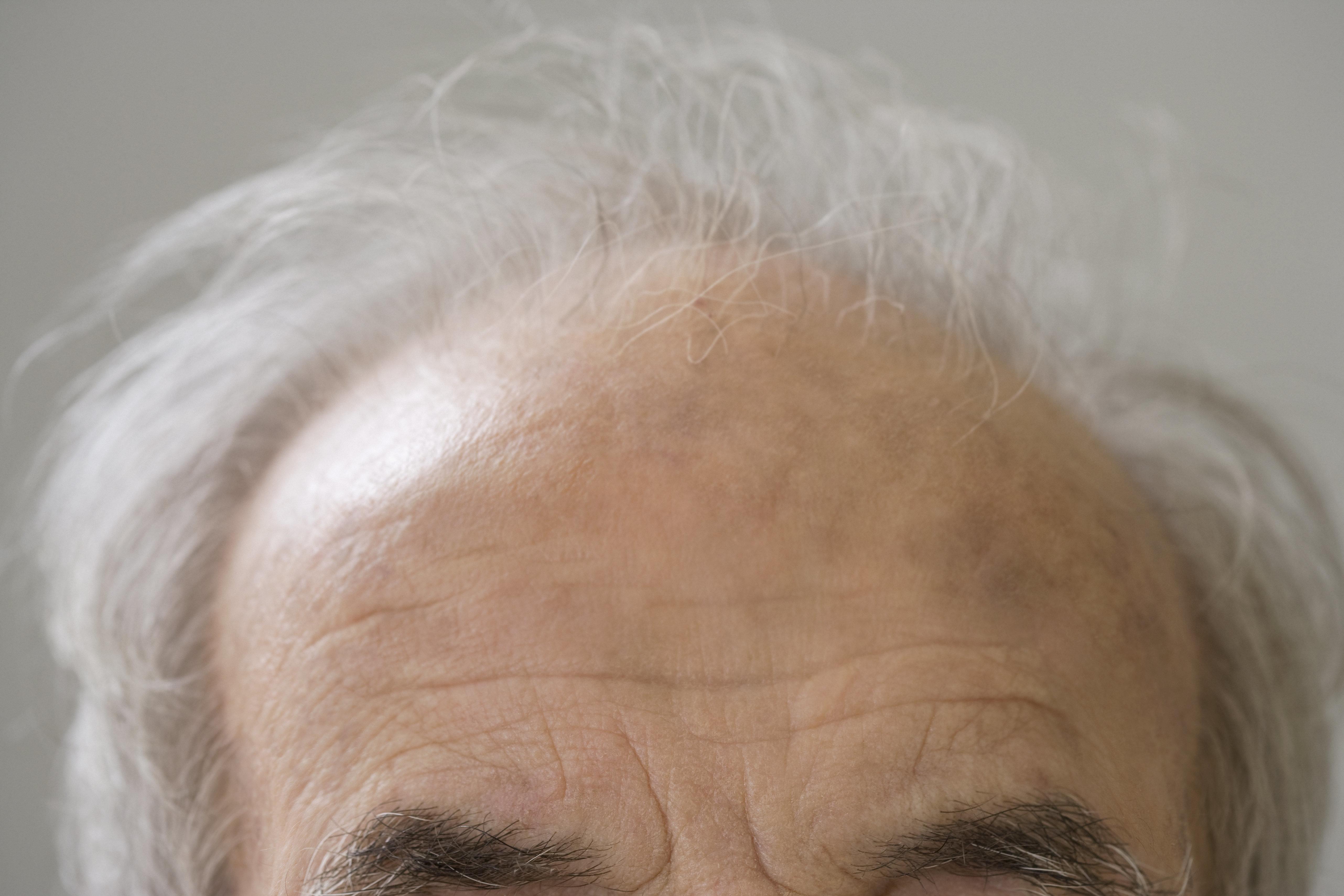 Close up of senior Hispanic man¿s balding head