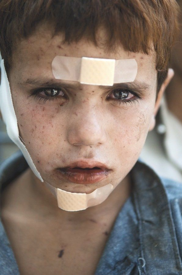 Jalid, an Afghan child wounded by NATO bombs.