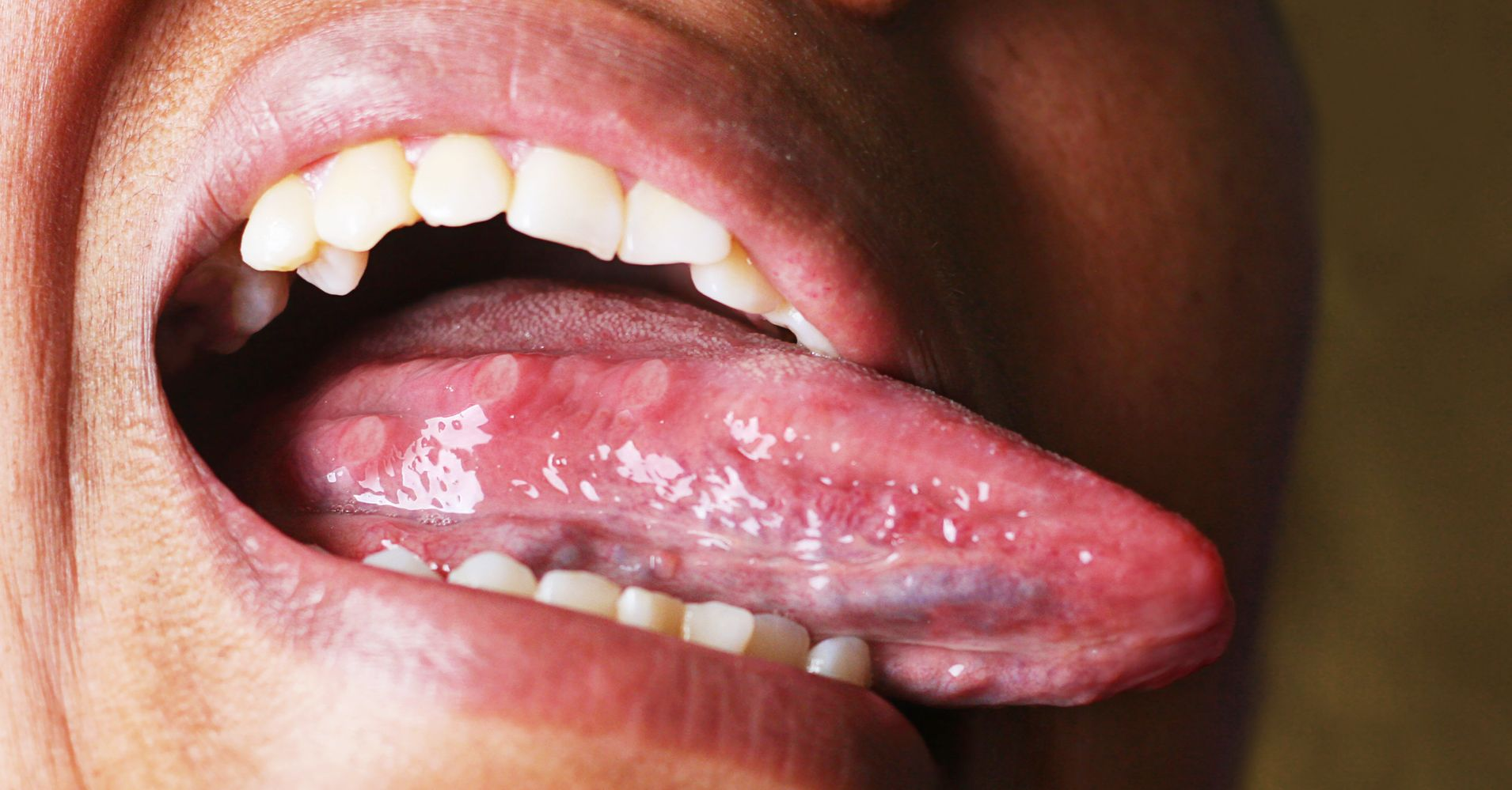 What Your Tongue And Tonsils Could Tell You About Your Sleeping