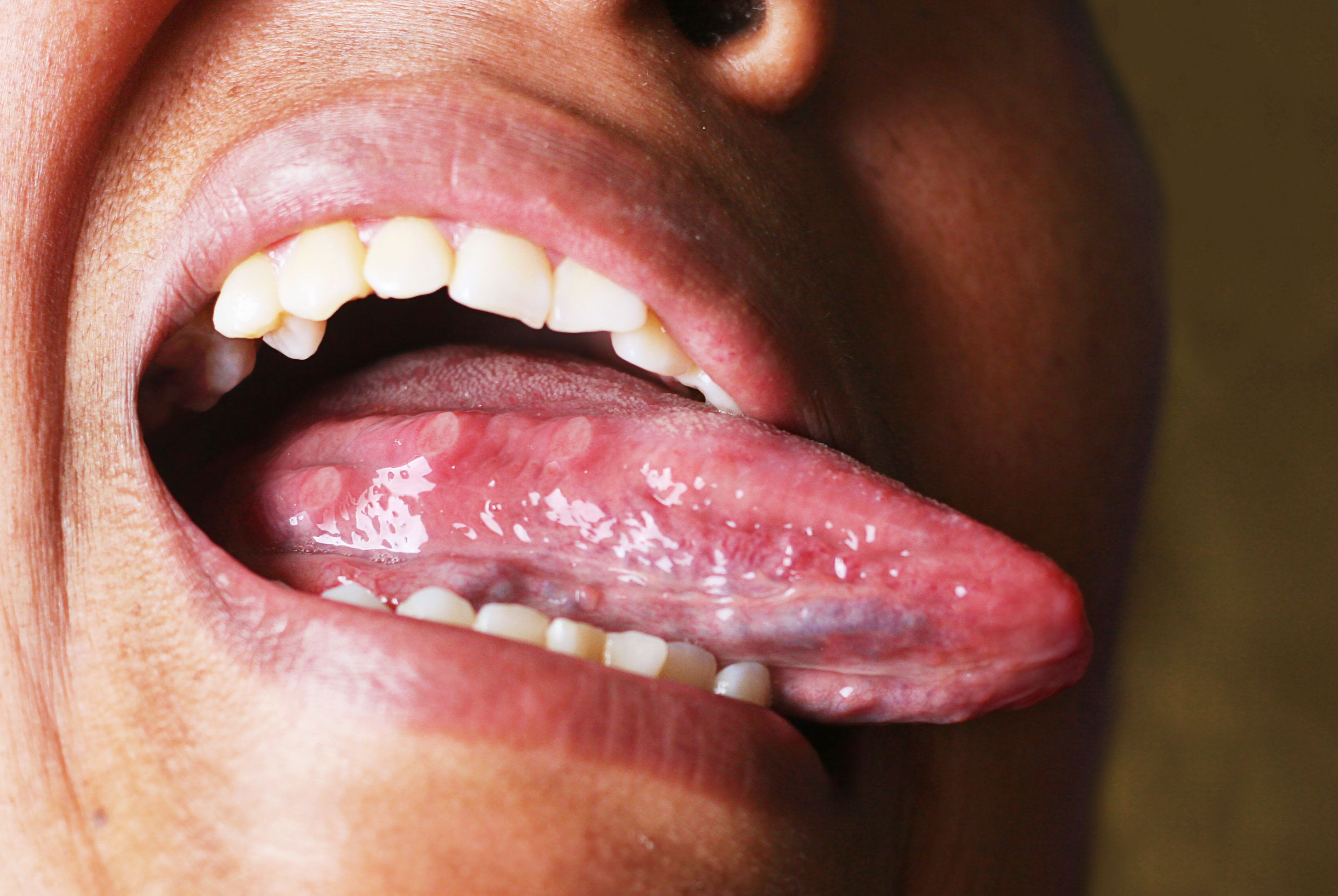 Acne on the tongue caused by bad nutrition