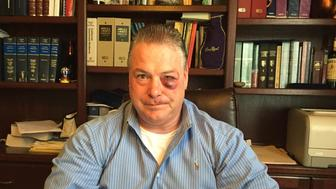 James Crawford, defense attorney in Orange County, California claims that a District Attorney Investigator attacked him outside of a court room.