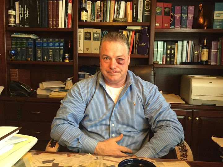 James Crawford, defense attorney in Orange County, California, claims that a district attorneyinvestigator attacked him