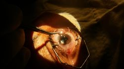 We Could Banish Cataracts Forever Thanks To 'Living Stem Cell Lenses'