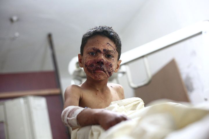 A wounded Syrian boy sits at a makeshift clinic after a mortar reportedly fired by Syrian government forces fell in the besie