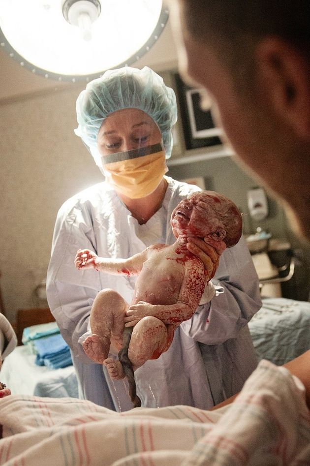 Touching Photographs Capture The Beauty Of Caesarean