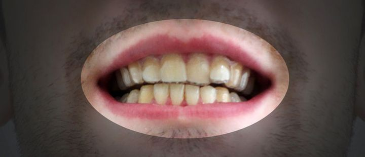 College student made his own braces for 60 and his teeth look amos dudley solutioingenieria Images
