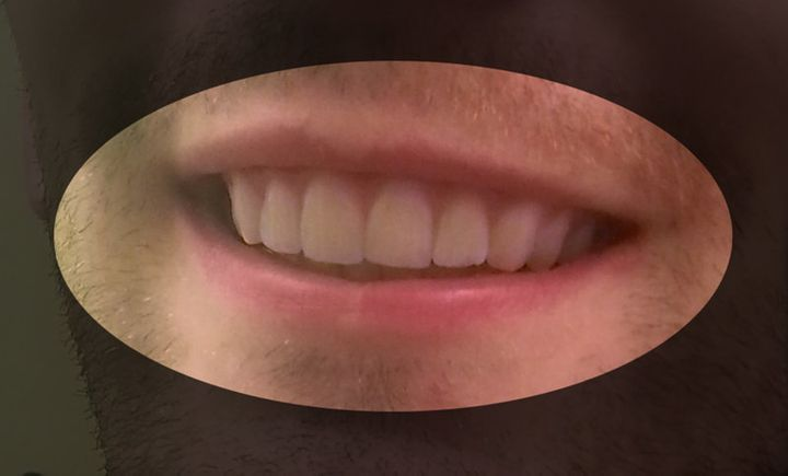 Dudley's teeth, as a result of his own 3-D printed braces.