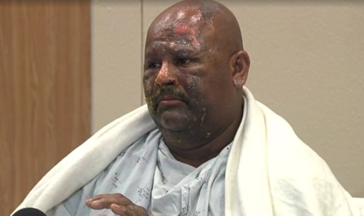 Ricky Charles, 52, says he's extremely lucky after a fire breathing stunt backfired, leaving his face engulfed in flames.