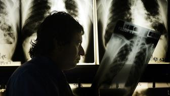 UNITED STATES - JUNE 28:  HOLD FOR JOHN LAUERMAN STORY-- Dr. David Ashkin, a pulmonary specialist with a research interest in Tuberculosis, examines a chest X-ray at A.G. Holley State Hospital, Lantana, Florida, June 28, 2007.  (Photo by Eliot J. Schechter/Bloomberg via Getty Images)