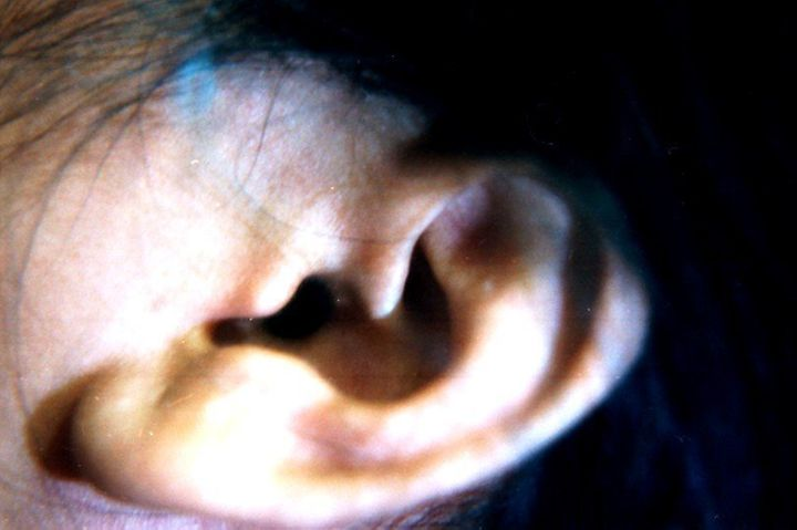 10 Hacks To Help You Hear Better | HuffPost