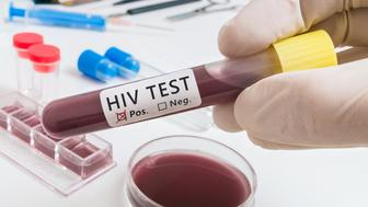 Test tube with blood for analyzing HIV virus.
