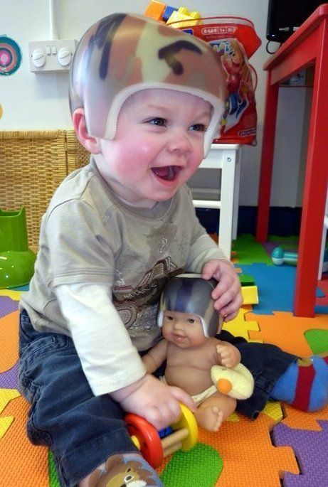 Plagiocephaly Awareness Day: Mum Urges Parents To Be Aware Of 'Flat Head Syndrome'