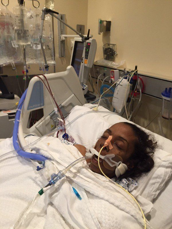 Tanya on breathing tube in ICU.
