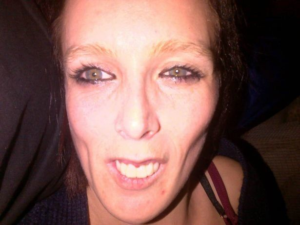 Jeremy Kyle 'Tooth Woman' Is Unrecognisable After £10K Dental