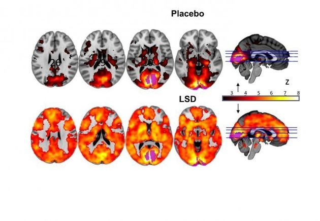 So This Is What Your Brain Looks Like On
