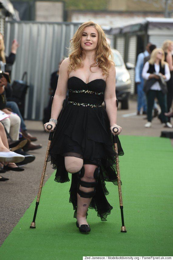 Vicky Balch, who appeared on the runway for the Models of Diversity catwalk show in London in