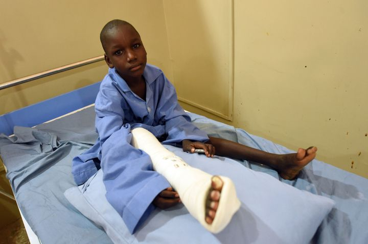 This Nigerian boy in Maiduguri is one of many injured in Boko Haram attacks.  At least 17,000 people are estim