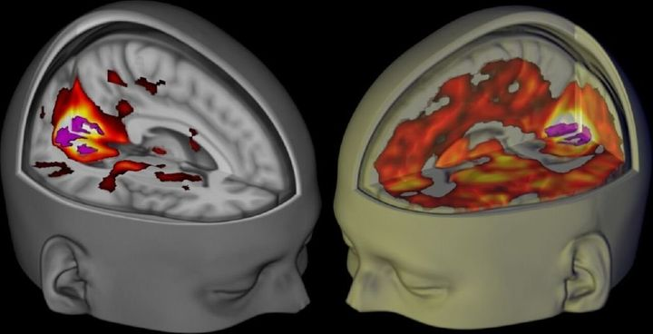 Researchers at Imperial College London compared fMRI scans of the brain on LSD (right) with scans of the brain on a placebo (
