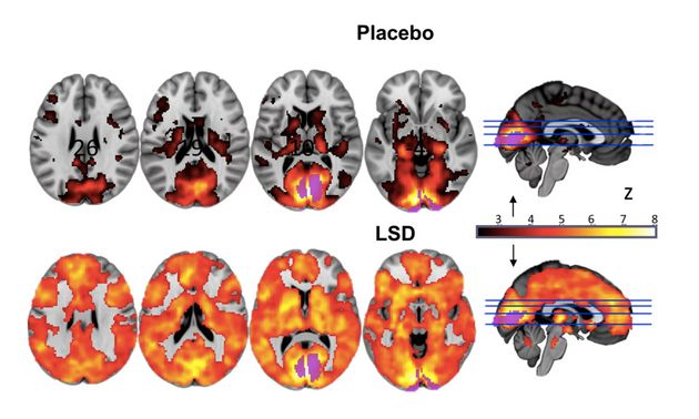 Researchers at compared fMRI scans of the brain on LSD to the brain scans of people who'd received a...