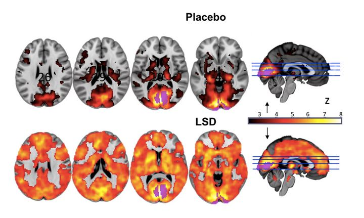 Researchers at compared fMRI scans of the brain on LSD to the brain scans of people who'd received a placebo. The top ro