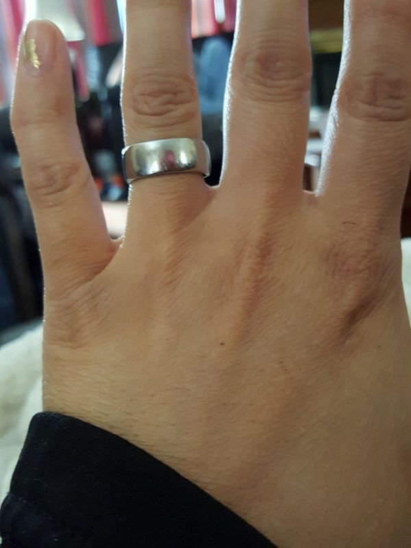 Husband Broke His Ring Finger