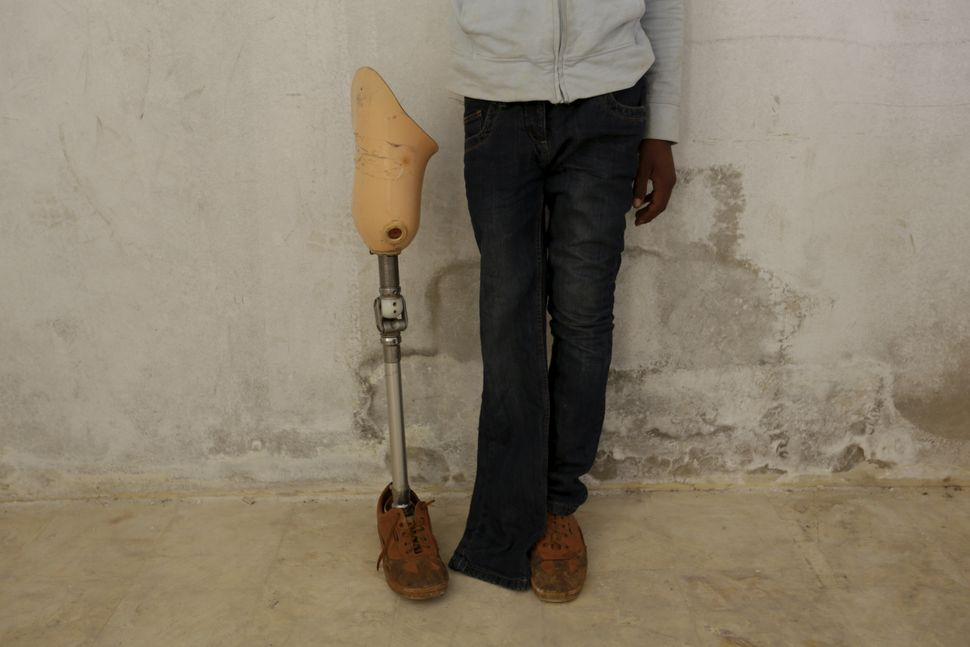 A man with an amputated leg poses next to an artificial limb that had been broken.