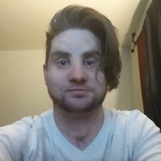 Mitch Hunter following his face transplant