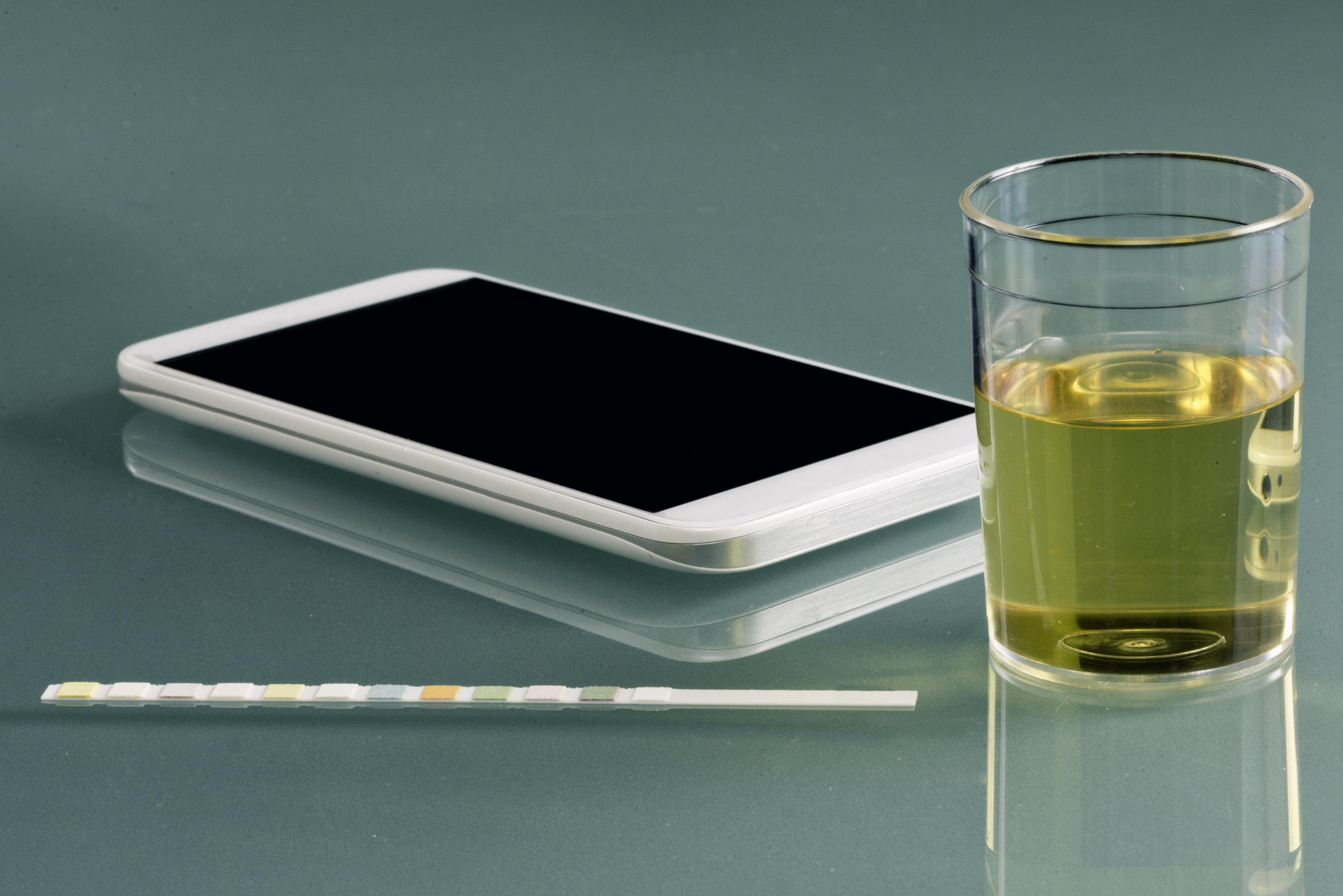 Personal urine testing kit - urine sample, test strip, smart phone with healthcare app