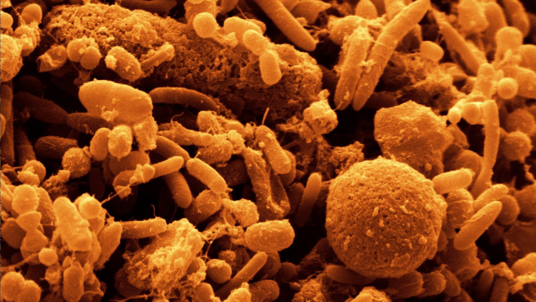 вам, фото бактерий человека на теле поболтаем женских