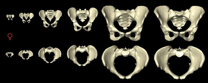 A computer model shows views of the female pelvis from the front (top row) and from above (bottom row) as it change