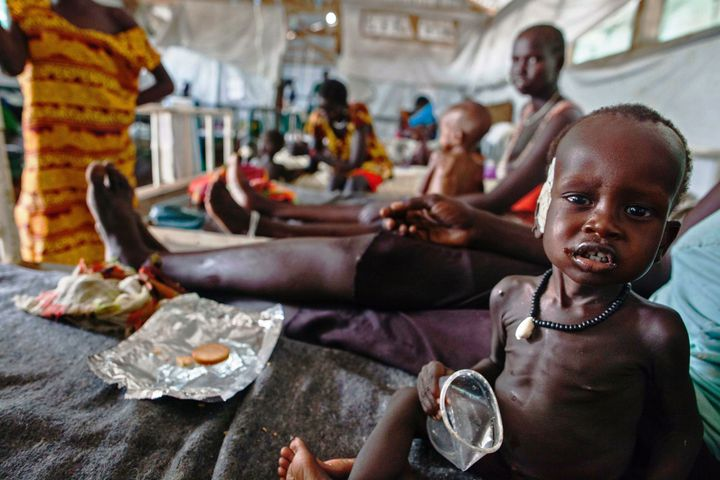 The war has left tens of thousands of people dead, over 2 million displaced and nearly 3 million in danger of starvation.