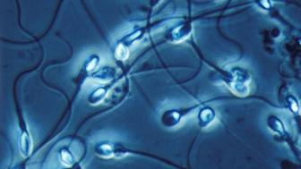 Human sperm in phase contrast. 700x