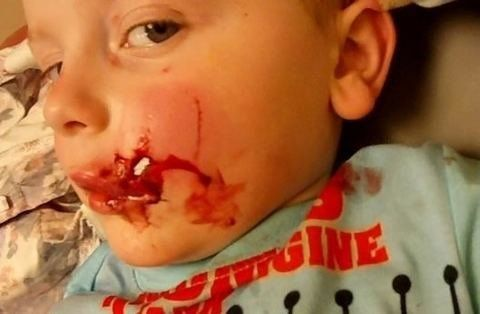 Family Share Shocking Image Of Toddler's Injuries To Warn Of Dog Attack