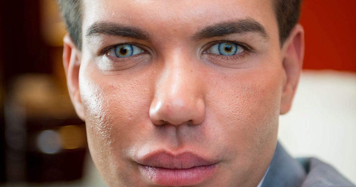 Plastic Surgery Addict Rodrigo Alves Will Get 163 50 000