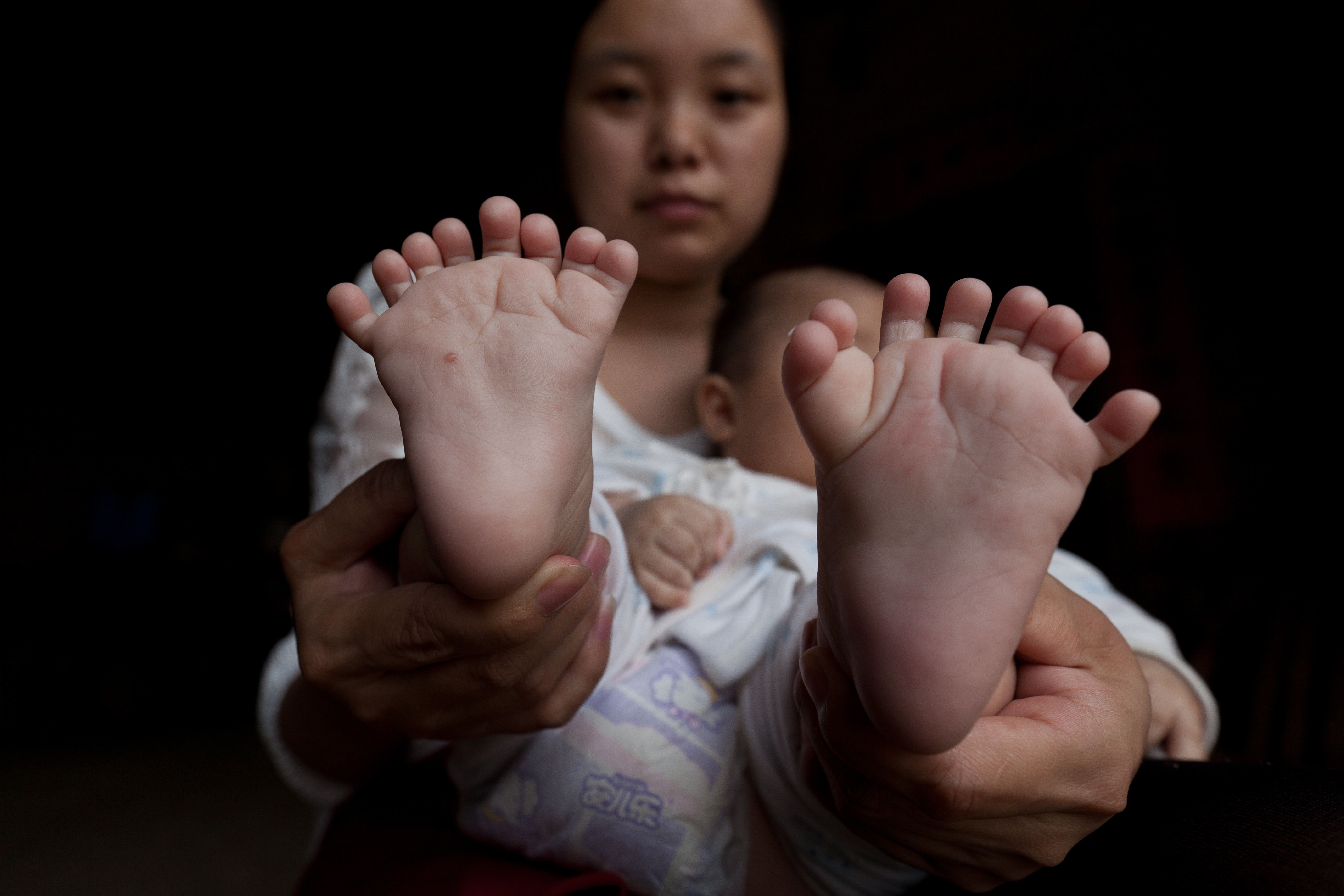 YUEYANG, CHINA - MAY 01:  (CHINA OUT) A mother shows her 3-month-old baby boy's feet with 16 toes at Zhongping village on May 1, 2016 in Pingjiang County, Yueyang City, Hunan Province of China. Hong Hong was a 3-month-old baby boy who was born with 15 fingers and 16 toes. He has two palms on each hand with 7 fingers on right hand and 8 fingers on left hand. He also has 8 toes on each foot. Hong Hong's mother had 6 fingers on each of her hands and 6 toes on each of her feet. A doctor at Hunan Province People's Hospital told Hong's father that his son should have an operation between six months and 1 year old.  (Photo by VCG/VCG via Getty Images)