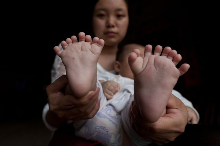 Hong Hong was born with 15 fingers and 16 toes. He has two palms on each hand with seven fingers on the right hand and eight