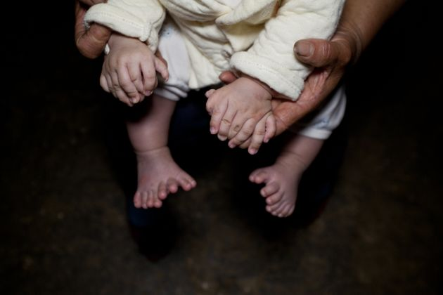 Baby Born With 31 Fingers And Toes In