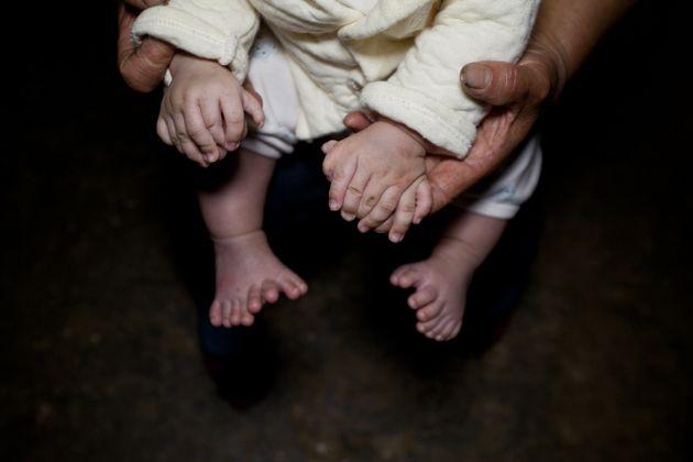 指が31本ある赤ちゃんが中国で生まれた【画像】