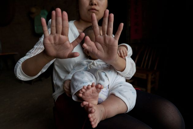 Hong Hong's mother has six fingers on each hand, and six toes on each