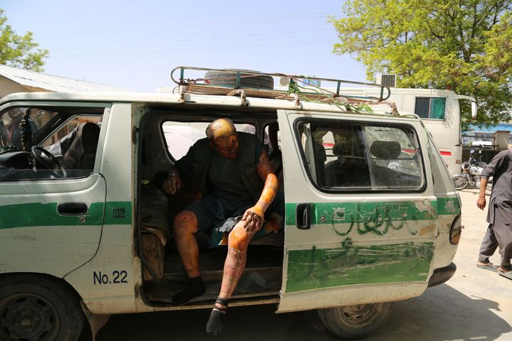 An injured man is seen in a vehicle after two buses and a fuel tanker collided on a major highway in the Ghazni province of A