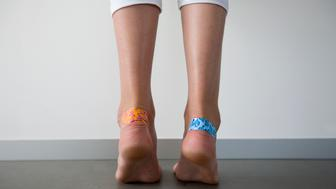 girl with adhesive plasters on the blisters on her