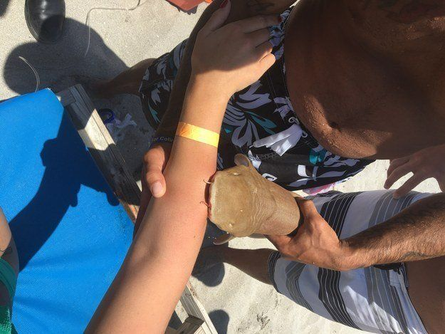 A nurse shark is seen clamping onto a woman's arm after biting her in the waters off Boca Raton, Florida on Sunday.