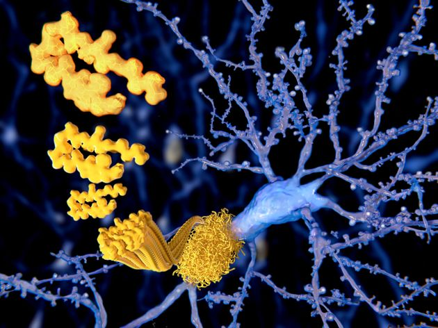 Marijuana Compounds Found To Remove Alzheimer's Proteins From The