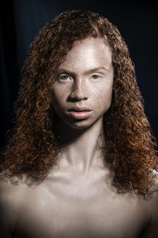 Photographer Proves Why Redheads Are 'Red