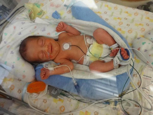 Matthew smiling at just 33 weeks gestation age (he was born at 32 weeks and 2 days). He was 6 days old in this picture.