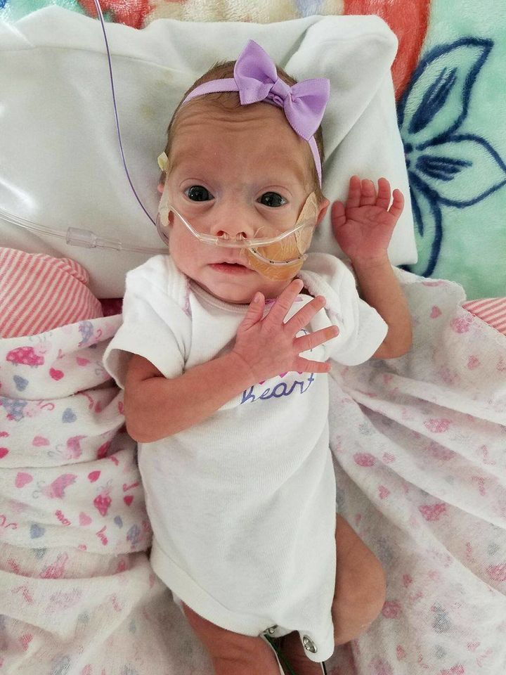 Baby Dahlia was born at 28 weeks, weighing two pounds, five ounces.