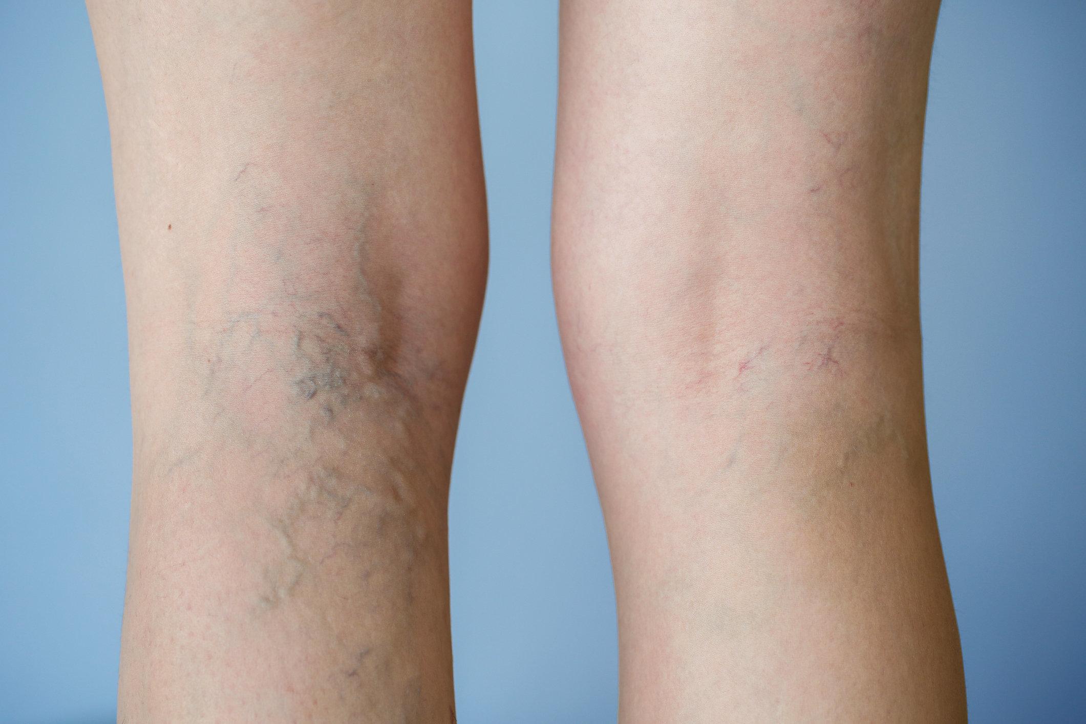 are varicose veins