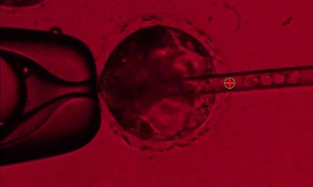 Scientists Growing Human Transplant Organs Inside